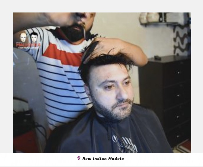 Male models required for hair patch company video shoot